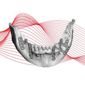 Kirurški instrumenti i kitovi